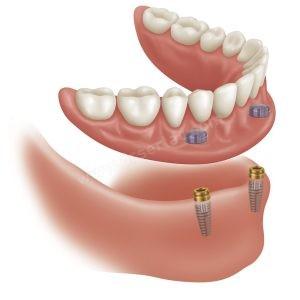 Diş Protezi Fiyatı