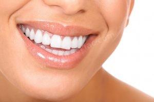 Estetik Diş Fiyatları