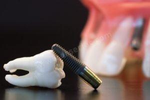 İmplant Diş Nedir