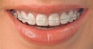 Ortodonti Fiyatı