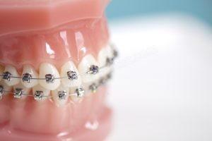 Ortodonti Fiyatları