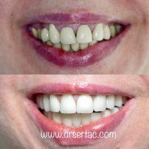 eski kaplama yerine zirkonyum diş yapımı önce sonra