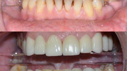 Çürük Diş İçin Zirkonyum Diş Kaplama Örneği