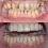 Kaplama Altındaki Dişin Çürümesi