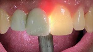 Zirkonyum ve Porselen Diş Farkı