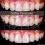 Diş Estetiği ve Gülüş Tasarımı