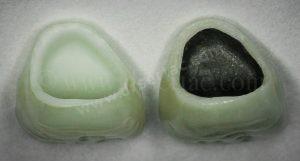 Zirkonyum diş kaplama ile porselen diş kaplama